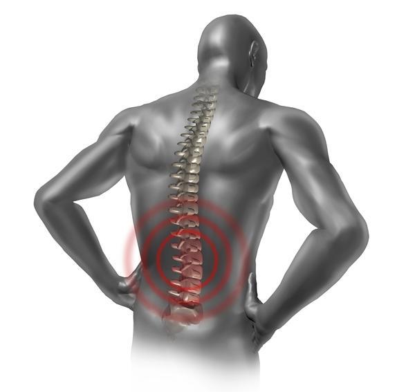 fortes douleurs dans le dos